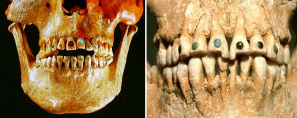 Mayan-civilization-gemstone-teeth-gold-grillz