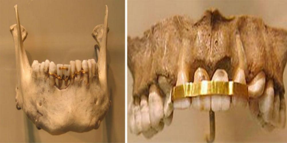 egypt-gold-plate-teeth